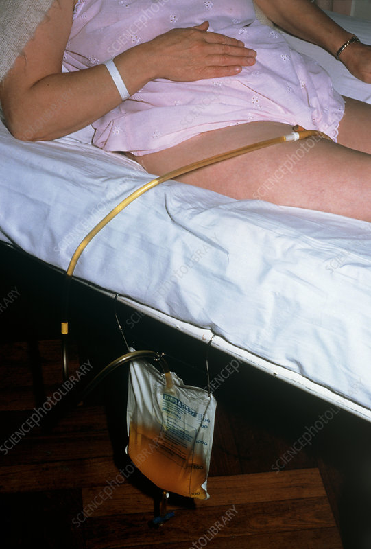 Bedridden female patient with urinary catheter