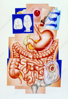 Artwork of human intestines and colostomy