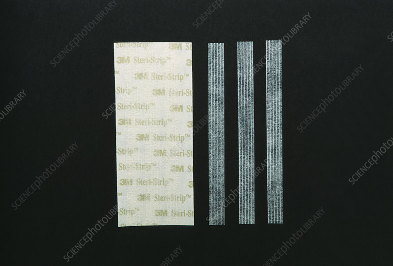 Suture strips