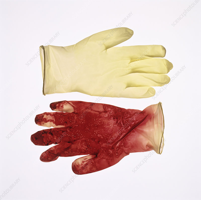 Gloves before and after surgery