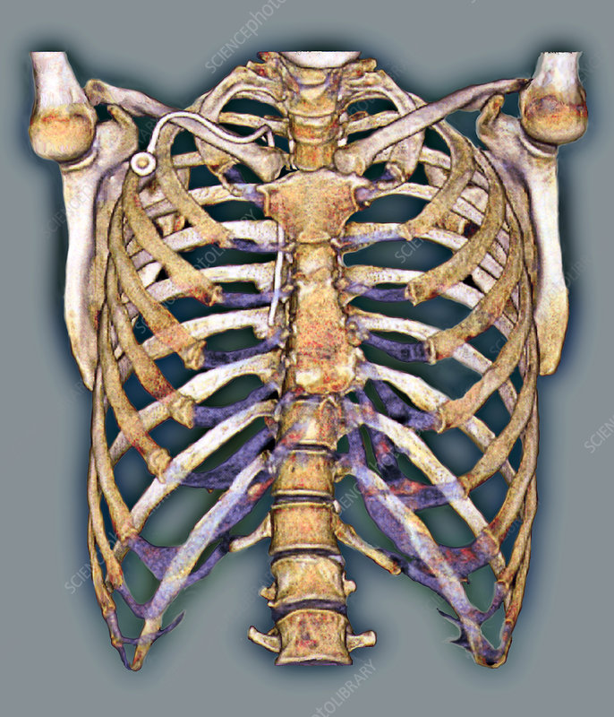 Permanent chest catheter, 3D CT scan
