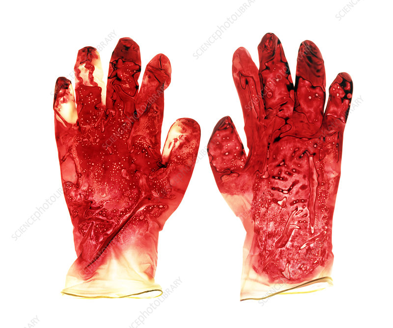 Blood-stained surgical gloves