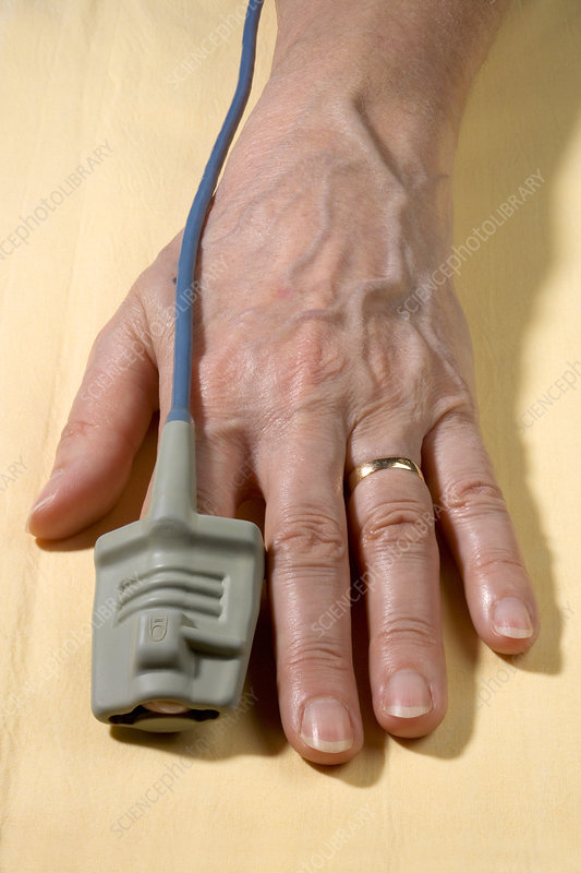 Pulse oximeter on a patient's finger