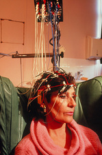 EEG studies of Alzheimer's disease