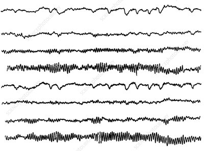 Normal EEG pattern (8 channels)