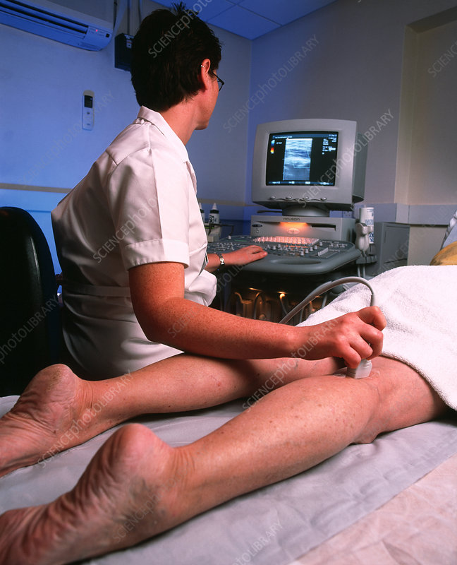 Doppler ultrasound examination of a leg