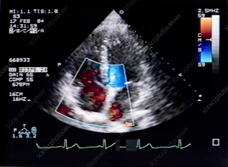 Doppler Echocardiogram of Heart