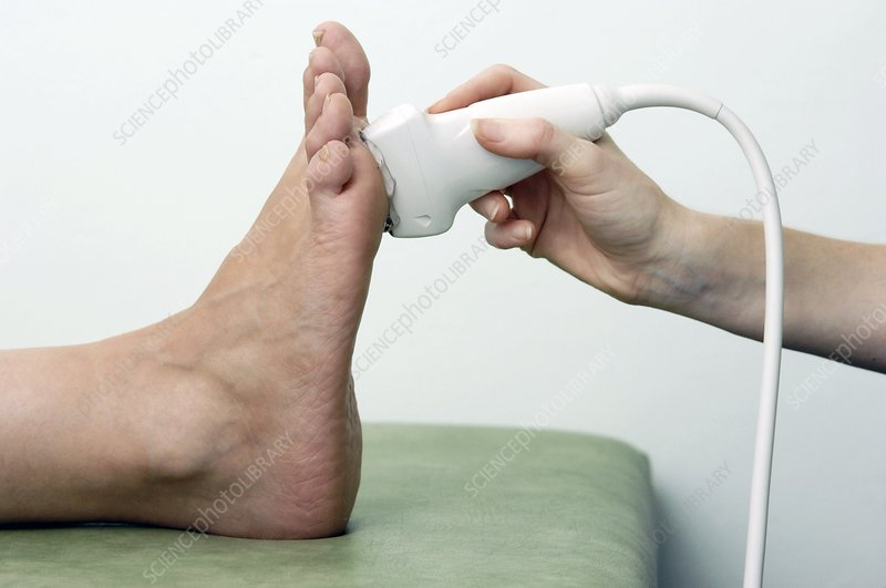 Podiatric ultrasound