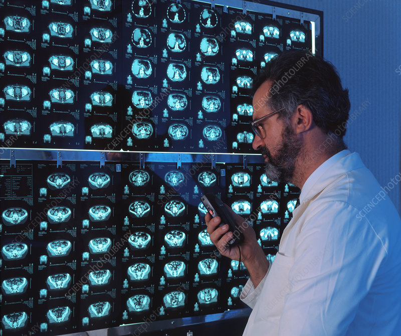 Radiographer examining a series of CT scans