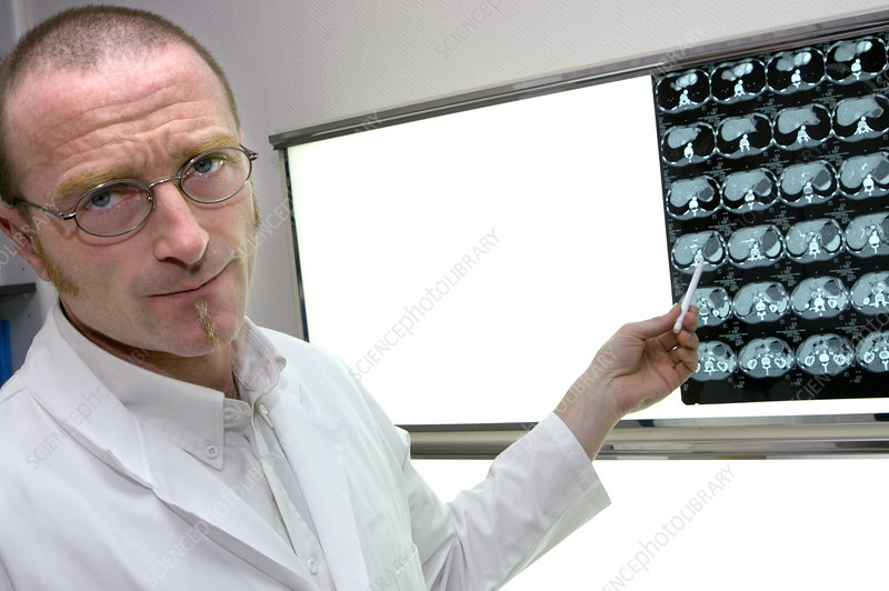 Radiologist studying abdominal CT scans