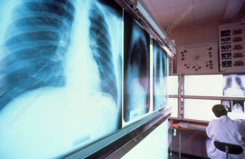 Doctor examining chest X-ray films