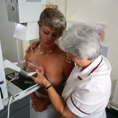 Cranio caudal mammography examination of breast