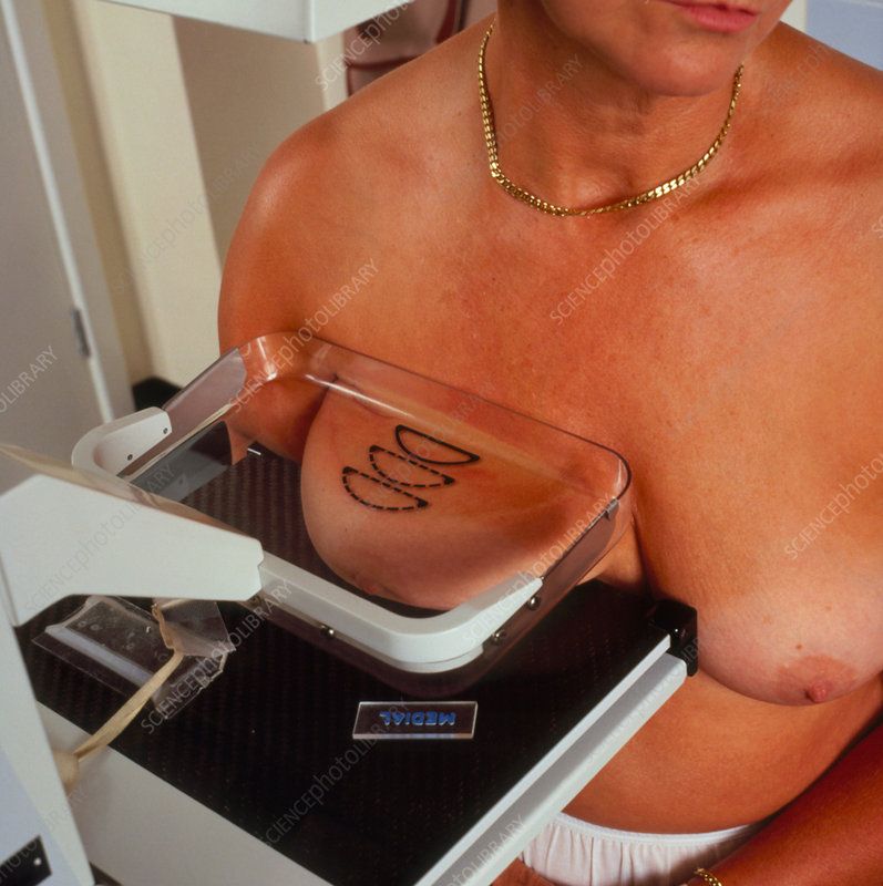 Woman patient undergoing mammogram