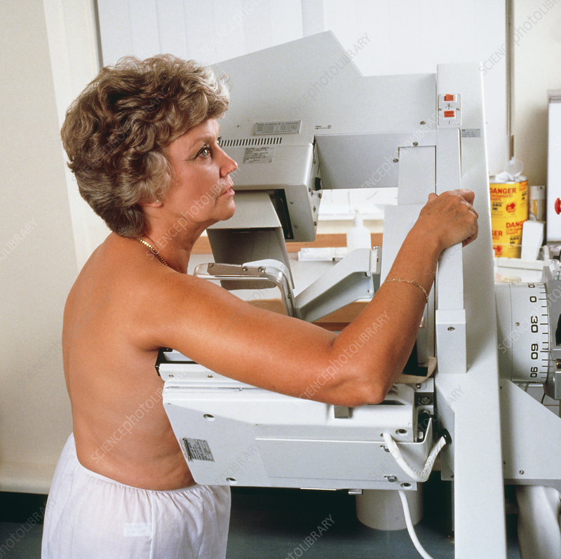Lateral oblique mammography examination