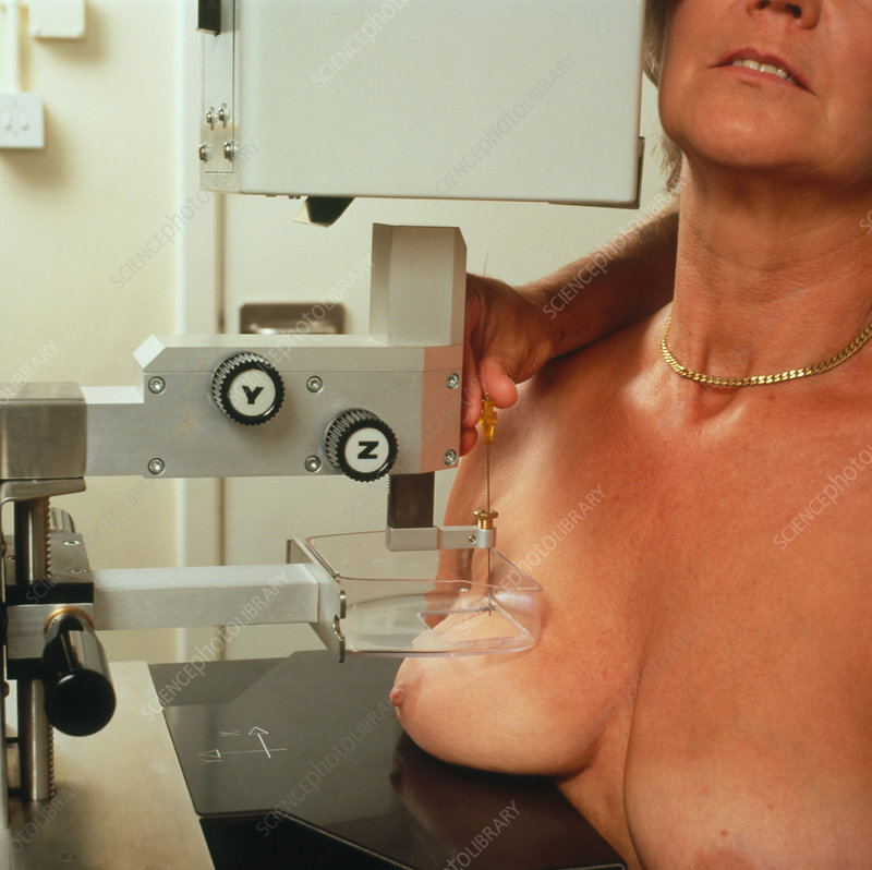 Needle biopsy of a woman's breast