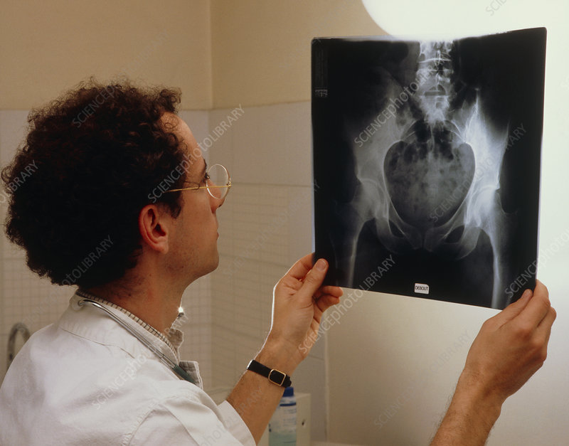 Doctor examining pelvic X-ray plate on light box