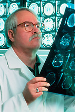 Doctor studying film of CT head scans