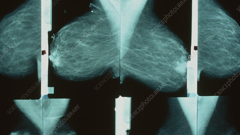 Series of breast mammograms on a lightbox