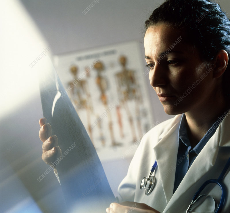 Female doctor studying an X-ray image