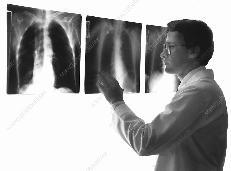 X-ray diagnosis