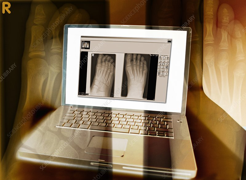 Foot X-rays on a laptop computer, artwork