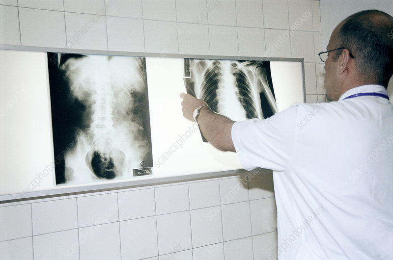 Doctor examining a chest x-ray