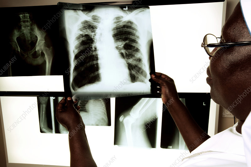 Radiographer looking at X-rays