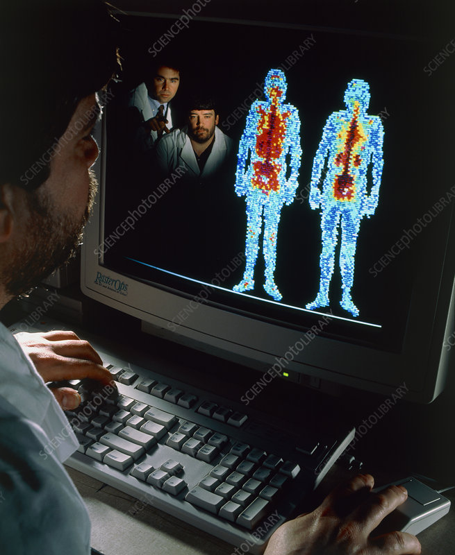 Doctors studying whole body gamma camera scans