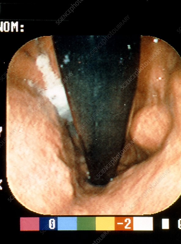 Gastroscope view of stomach tumour biopsy