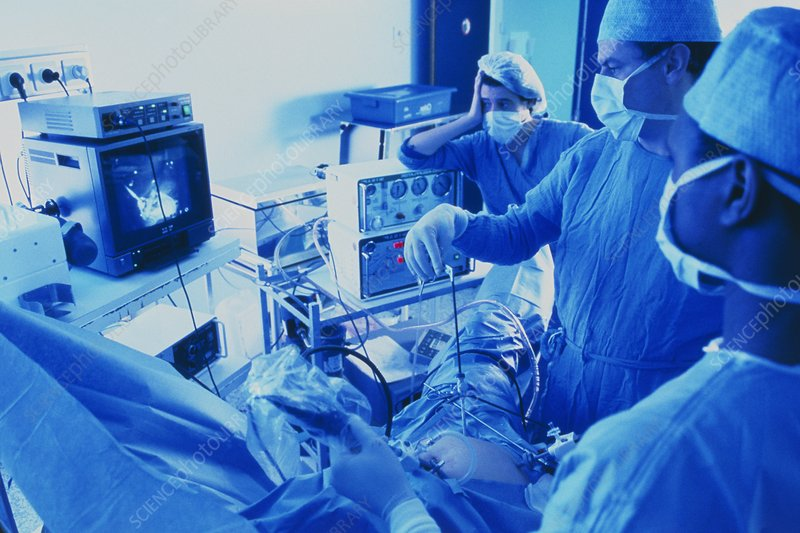 Surgeons in theatre performing laparoscope surgery
