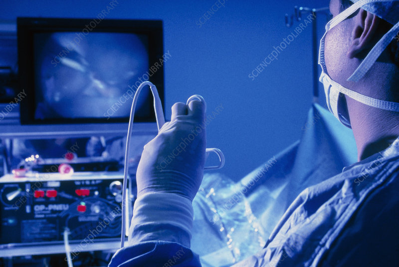 Surgeon using a laparoscope during surgery