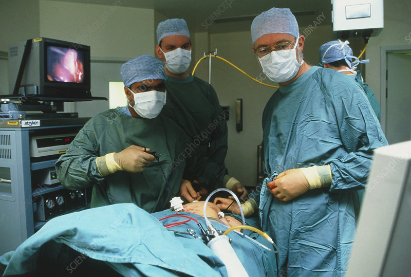Surgeons using laparoscope in gall bladder surgery