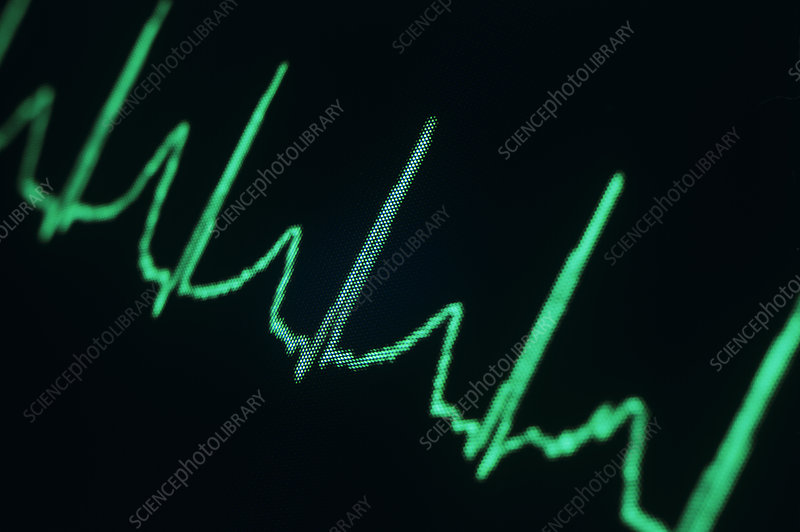 ECG of a normal heart rate