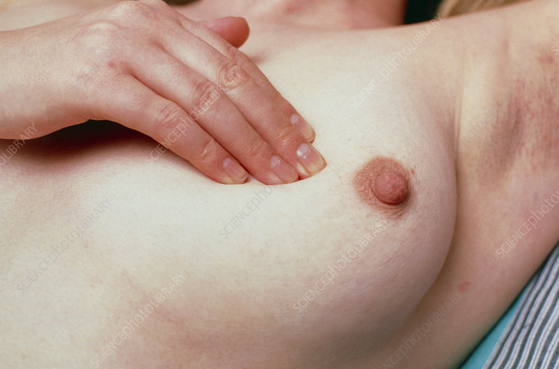 Breast with lumps model