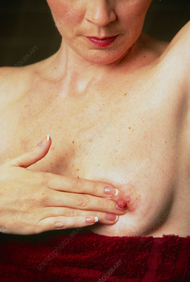 Woman examining her breasts for lumps or tumours