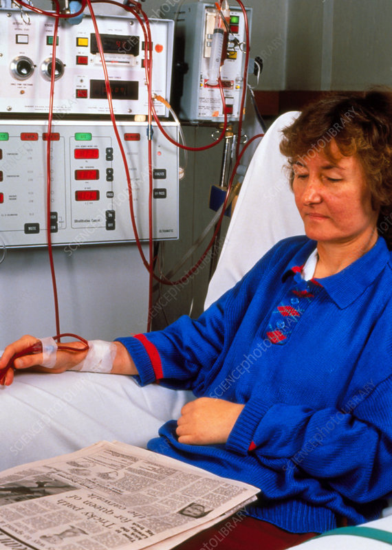Female patient using kidney machine