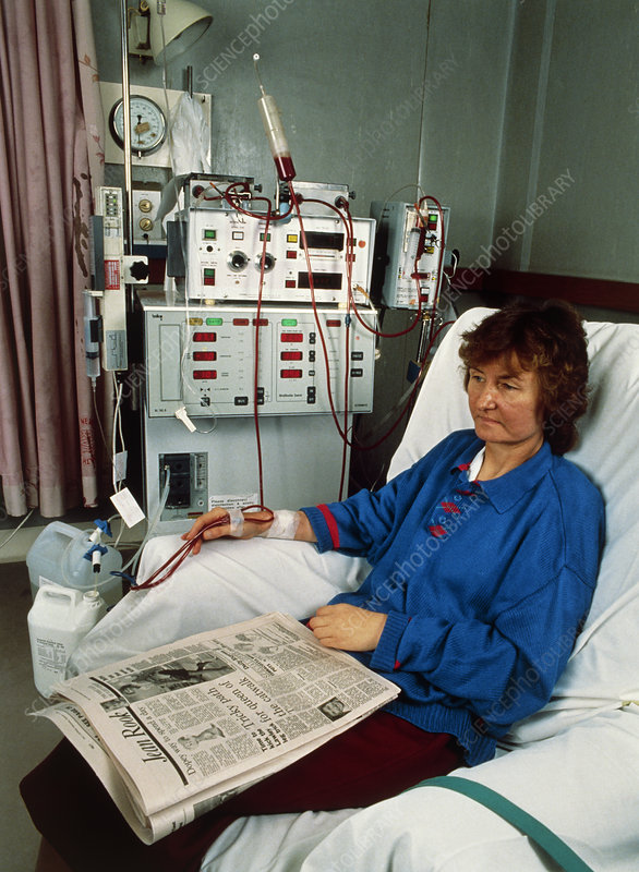Female patient undergoing renal dialysis