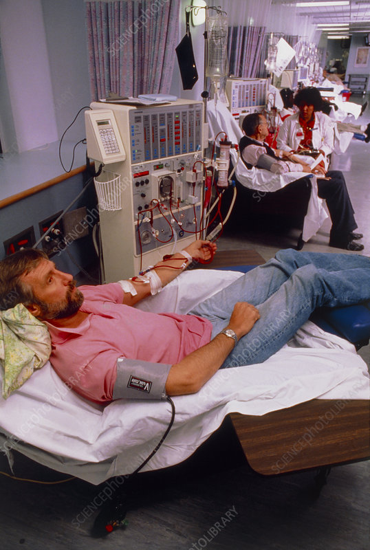 Man undergoing haemodialysis on kidney machine
