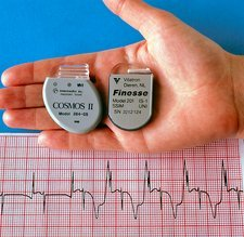 Hand holding two pacemakers