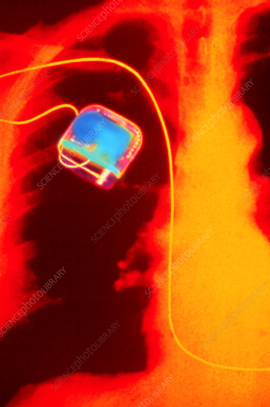 Coloured X-ray of implanted heart pacemaker