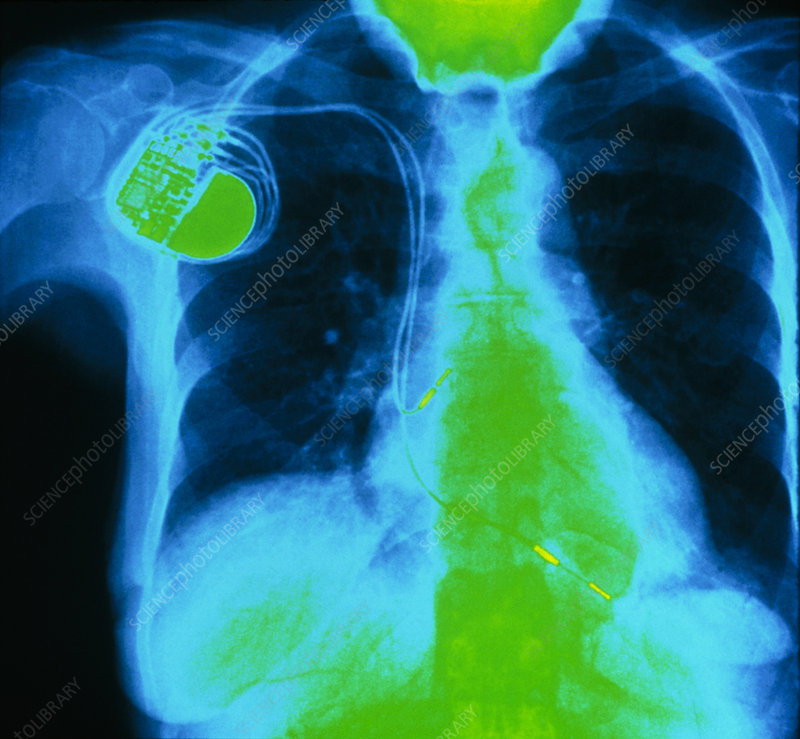 Coloured X-ray of double-chamber pacemaker in situ