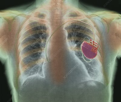 Heart pacemaker, X-ray