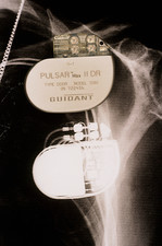 Pacemaker, X-ray