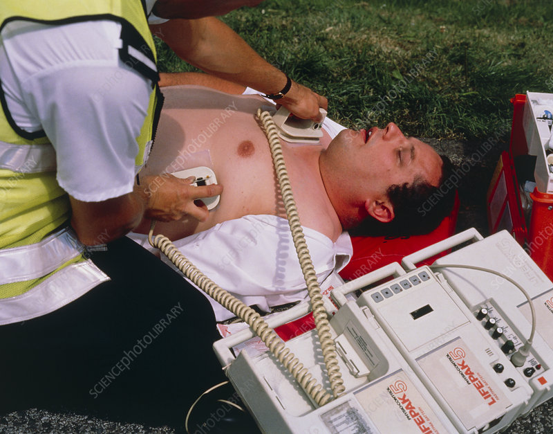 Portable defibrillator machine