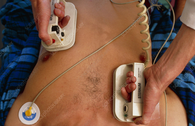 Use of defibrillator on heart attack victim