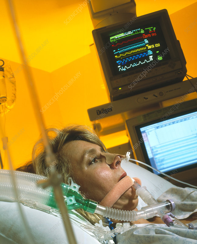 Intensive care monitoring of a woman