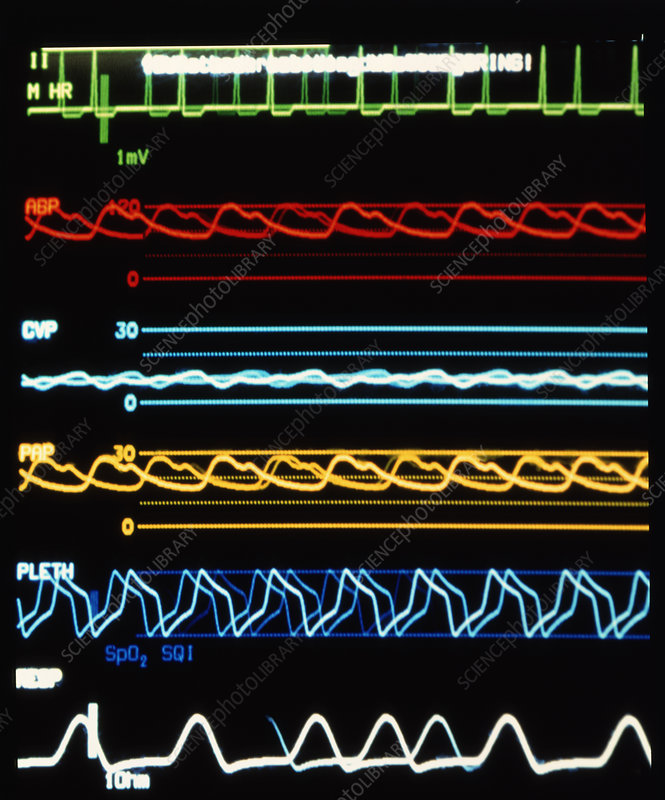 Monitor with patient's vital signs