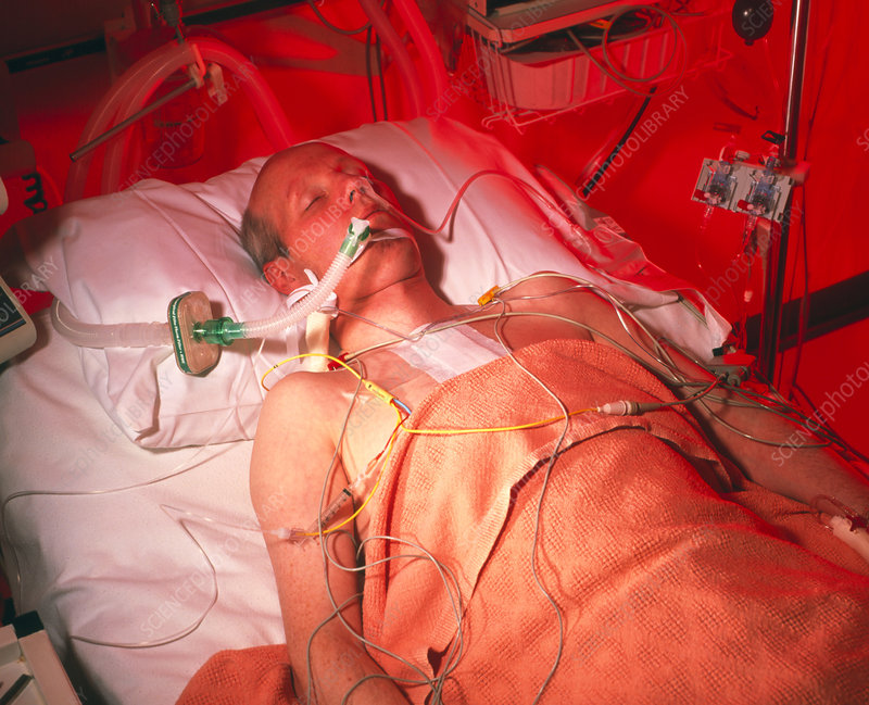 Man on respirator in cardiac intensive care
