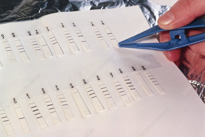 Western blot test for hepatitis C virus antibodies