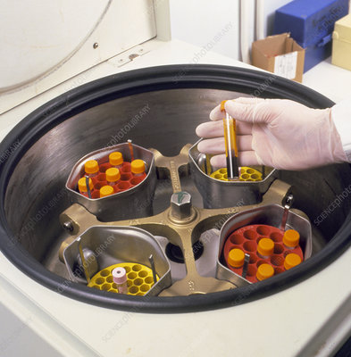 Centrifuge to separate blood components